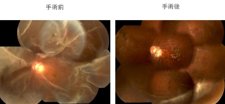 増殖硝子体網膜症