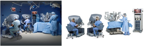 ロボット手術 ダヴィンチ