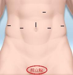 前立腺がんのロボット手術