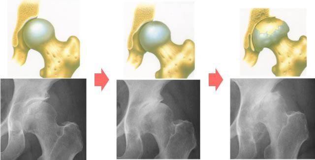 図2:変形性股関節症の進行。右側ほど、関節軟骨はすり減り、股関節症は進行している。