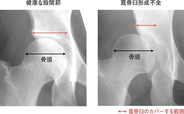 図3:健康な股関節(左)に比べ、寛骨臼形成不全(右)では、骨頭に対する寛骨臼のカバーする範囲(赤線)が狭い。