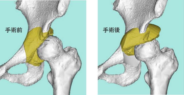 図7:寛骨臼回転骨切り術(緑の部分をくりぬいて移動し、骨頭をカバーする範囲を増やします)